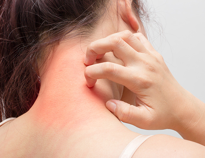 woman scratching her neck due to allergy irritants