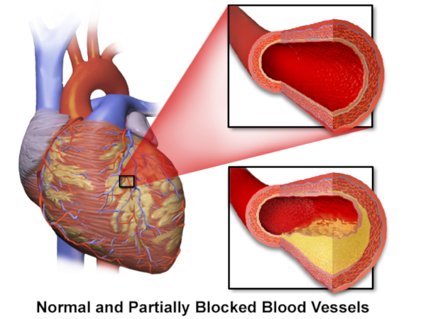 heart disease due to clogged artery causing blood pressure problems