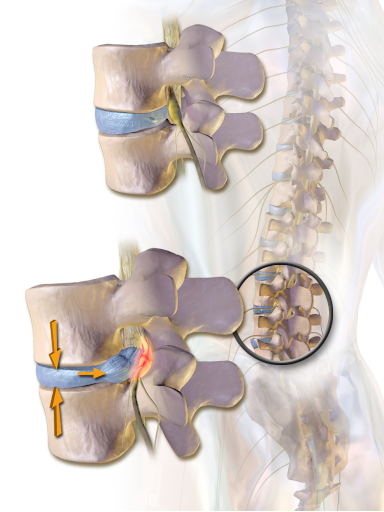 herniated disc on spine, cause of sudden, searing back pain