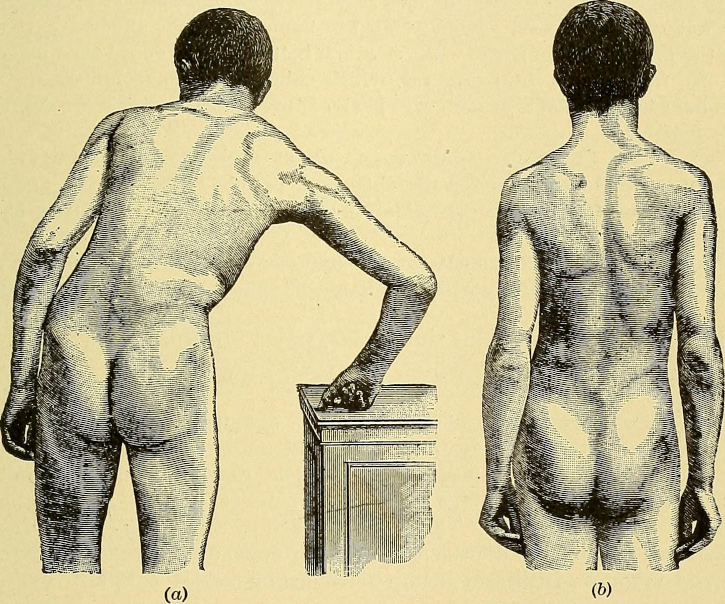 effects of poor posture on spinal alignment and muscle strength causing person to lean instead of standing straight, resulting in sciatica pain